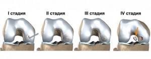 Асептический некроз коленного сустава: симптомы и лечение
