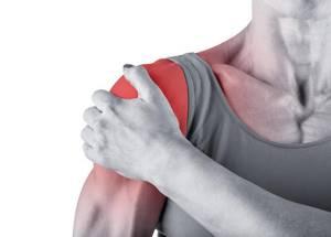 Синовит плечевого сустава: симптомы и лечение