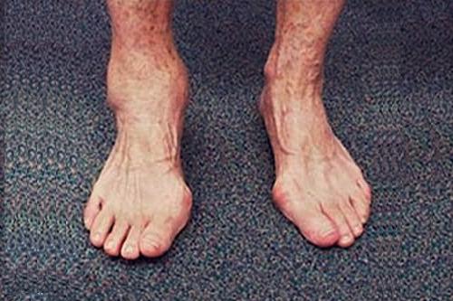 Деформирующий остеоартроз голеностопного сустава. Лечение