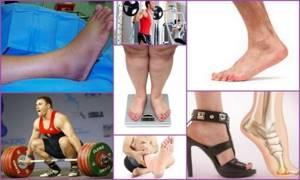 Артроз сустава большого пальца ноги: лечение