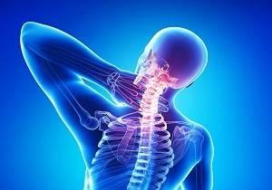 Остеохондроз шейного отдела 2 степени: симптомы, диагностика, лечение