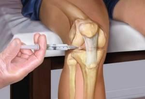 Пункция коленного сустава: как и зачем проводится