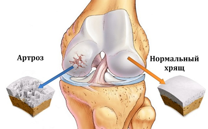 Видео презентация: профилактика гонартроза у пациентов с внутрисуставными переломами