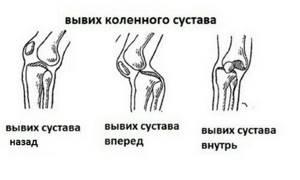 Вывих коленного сустава: симптомы, как лечить вывих колена и коленной чашечки