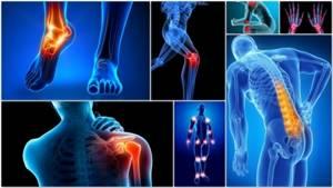 Блуждающий артрит: симптомы и лечение, меры профилактики