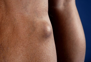 Киста Бейкера коленного сустава: причины, лечение, симптомы, фото