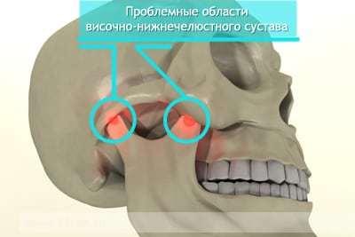 Боль в височно-нижнечелюстном суставе. Причины и лечение