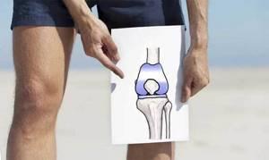Операция по замене коленного сустава, как делают