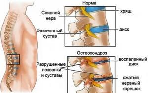 Лечебная гимнастика при остеохондрозе поясничного отдела позвоночника: комплекс упражнений