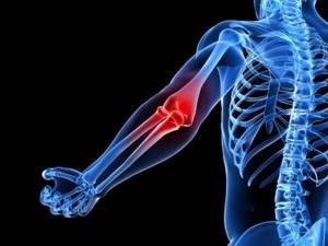 Боль в локтевом суставе при сгибании и разгибании: чем лечить, почему болит локоть