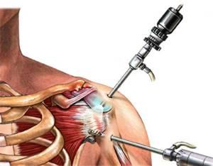 Разрыв связок плечевого сустава: симптомы и лечение