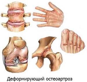Остеоартроз стопы: симптомы и лечение мелких суставов