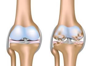 Наколенники при артрозе коленного сустава: как выбрать, цена, выбор материала