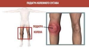 Ноющая боль в колене: причины, диагностика и лечение