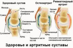 Живокост — бальзам для костей и суставов: инструкция, цена, состав