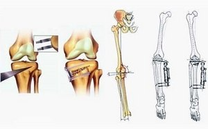 Корригирующая остеотомия: что такое и как выполняют