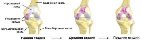 Народные средства лечение деформирующего артроза коленного сустава