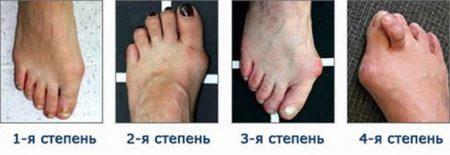 Вальгусная деформация стопы у детей: фото, лечение, причины, симптомы