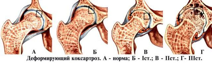 Артроз нижних конечностей: симптомы и лечение, причины, стадии