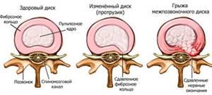Альтернативная медицина и межпозвоночная грыжа