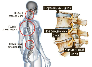 Остеохондроз шейно-грудного отдела позвоночника: симптомы и лечение