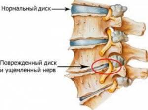 Зарядка при остеохондрозе грудного отдела позвоночника: польза и вред