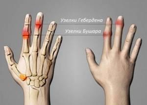 Узелки Гебердена и Бушара: лечение, симптомы, фото