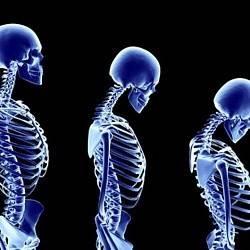 Остеопороз позвоночника: симптомы и лечение, причины