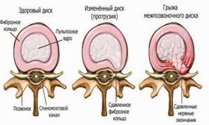 Циркулярная протрузия диска: виды, стадии,симптомы и лечение