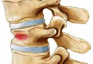 Лечение симптомов остеопороза поясничного отдела позвоночника