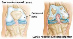 Лечение реактивного артрита коленного сустава: медикаменты и процедуры