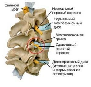 Боль в горле при шейном остеохондрозе: причины и способы лечения