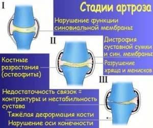 Артроз коленного сустава: симптомы и лечение, что такое, как лечить