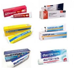 Самые эффективные обезболивающие мази для спины: обзор лучших препаратов