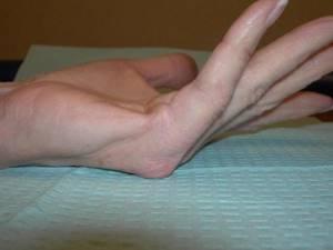 Контрактура Дюпюитрена: как лечить без операции