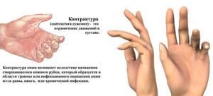 Какими бывают контрактуры, как их лечить: симптомы, способы диагностики и лечения