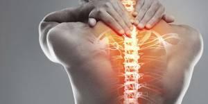 Ортопедический матрас при остеохондрозе: виды, показания, советы