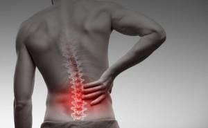 Спондилит — симптомы и лечение заболевания